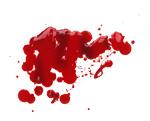 Выводим свежие пятна от крови